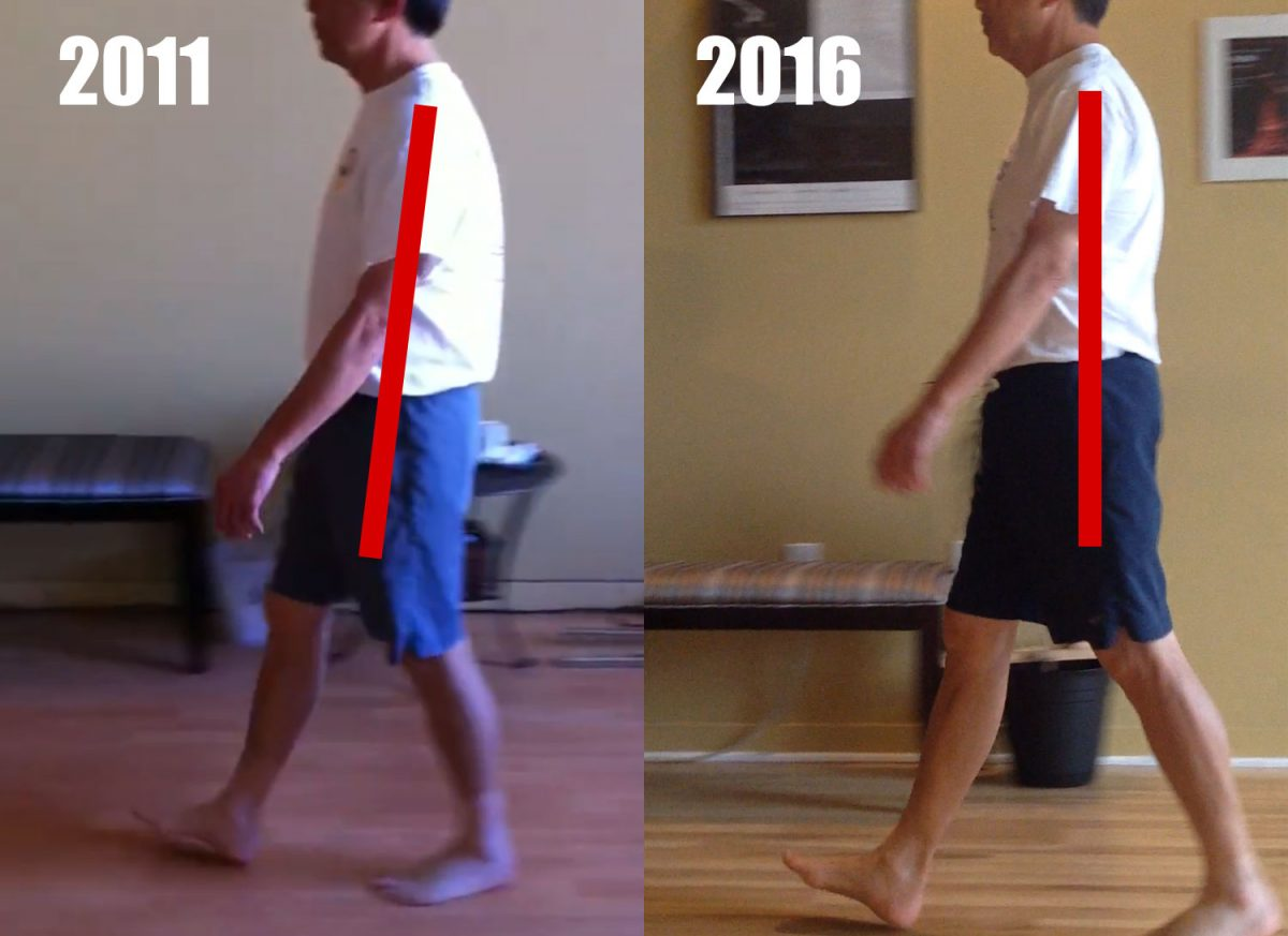 Gait Improvement